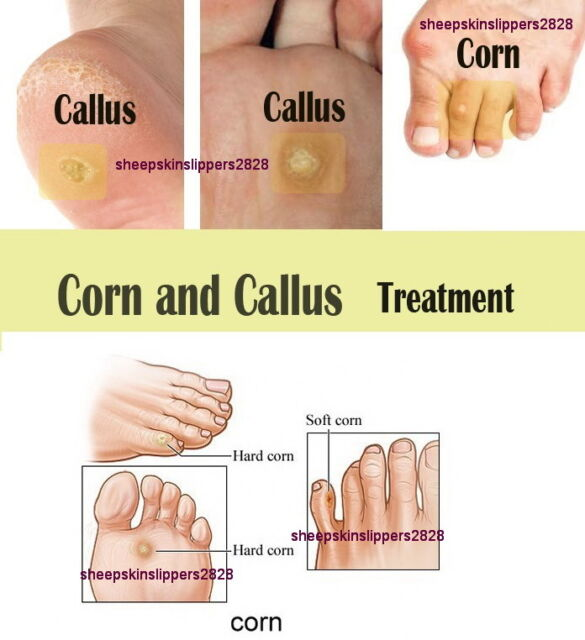 callus treatment salicylic acid
