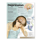 Understanding Depression Anatomical Chart by Lippincott Williams and Wilkins (Fold-out book or chart, 2007)