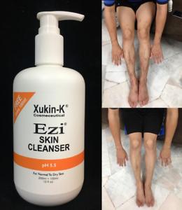 Xukin-K-Ezi-Skin-Cleanser-300ml-Shower-Gel-For-Eczema-Atopic-Dermatitis-Allergic