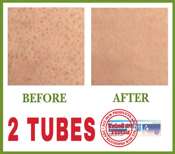 ***** NO MORE RED BUMPS ON SKIN   BEST KERATOSIS PILARIS TREATMENT   2 TUBES ***