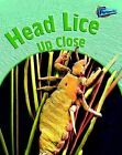 Head Lice Up Close by Robin Birch (Paperback, 2005)