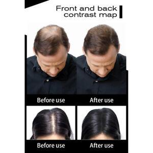 100-Natural-Keratin-Hair-Building-Fiber-Refill-Hair-Hair-Fiber-Thickening-Hair