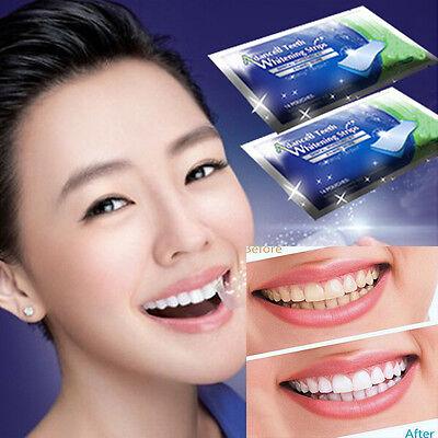 2pcs Pro Teeth Whitening Strips Tooth Bleaching Whiter Whitestrips Hot Sale