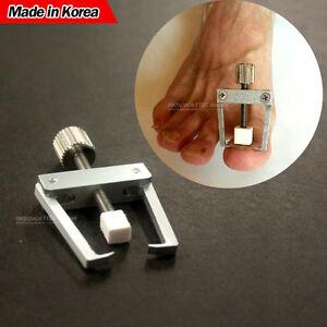 how to fix my ingrown toenail