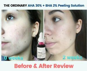 The Ordinary Peeling Solution AHA 30% + BHA 2% 30ml Exfoliating Skin.
