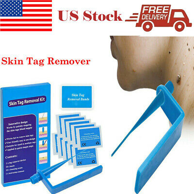 Micro Sets Skin Tag Remover Device Kit For Small To Medium Skin
