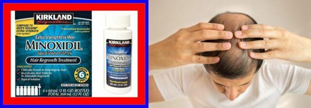 Provillus Mens Kit Hair Regrowth 4 Pills And 6 Sprayers 5