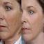 Microdermabrasion-Crystals-DIY-Face-Scrub-with-Vitamin-C-8-oz thumbnail 9