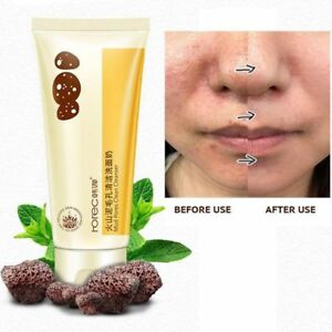 100g-Pore-Terminator-Cleansing-Foam-Volcanic-Mud-Cleanser-Moisturizing-Skin-Care