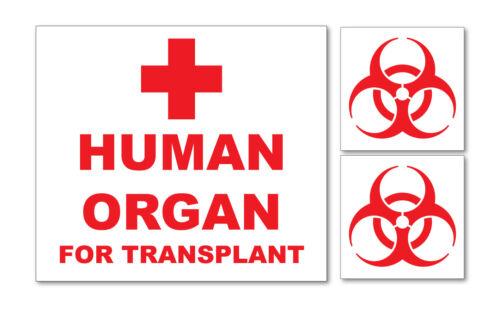 Laptop Medizinische Van Krankenwagen Auto Human Organ für Transplantation