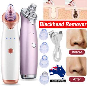 Face-Facial-Pore-Blackhead-Remover-Vacuum-Derma-Suction-Diamond-Dermabrasion-MN