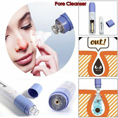 Electric Facial Pore Cleanser Face Blackhead Zit Acne Remover Skin Cleaner Tools