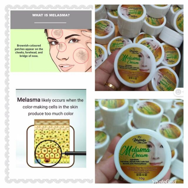 Out Of Stock Melasma Cream Dark Brownies Color Dark Spot Remover 100% Safe Very