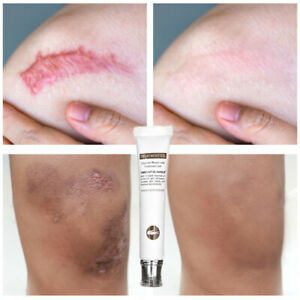Original Repair Scar Cream Removal Scars For Face Or Body