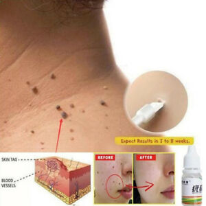 Skin-Tag-Remover-Warts-Treatment-Foot-Corn-Remover-Foot-Care-Medical-10ml-YEHN