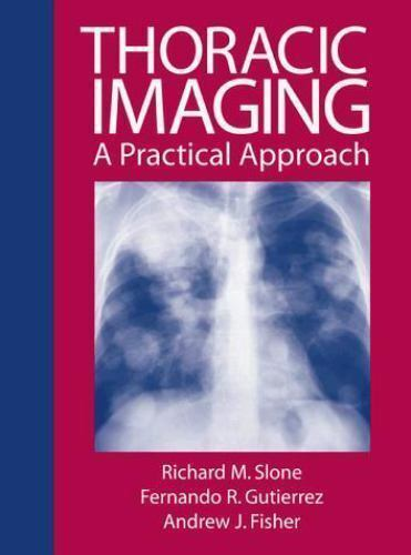 Thoracic Imaging: A Practical Approach, Guitierrez,Fernando, Fisher,Andrew, Slon