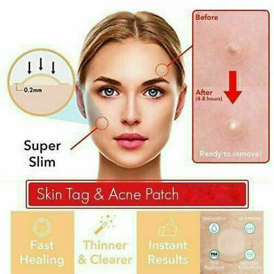 Perfect Tea Tree Skn Tagg Patch Acne Pimple Patch Invisible