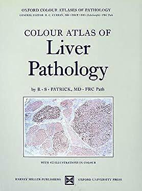 Colour Atlas of Liver Pathology by Patrick, R. S.