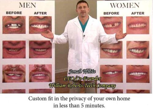 LARGE SIZE VENEERS INSTANT SMILE BEAUTIFUL TEETH 2 PKG BEADS dentures  MAKEOVER