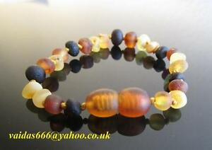 Baltic-Amber-Bracelet-Anklet-Unpolished-Colours-Mixed-Knotted-Beads-14-19-cm