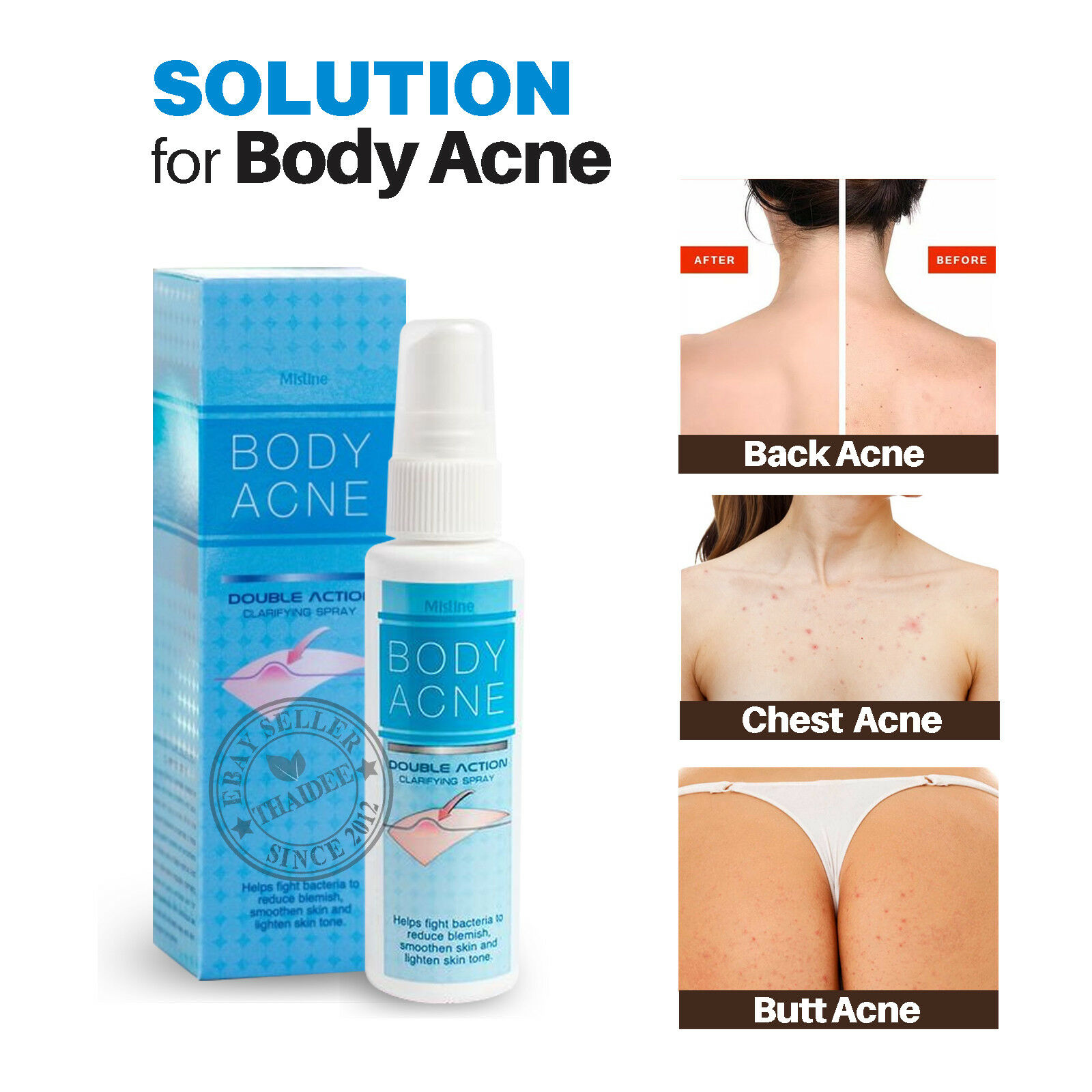 Back Acne Treatment Products Uk