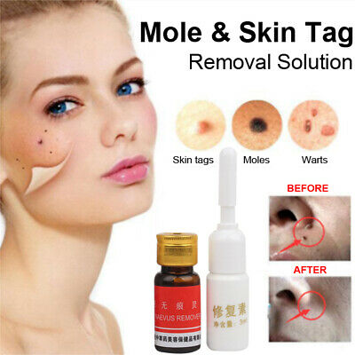 NEW Mole & Skin Tag Removal Solution 100% remover skin ...