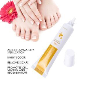 Crema-De-Tratamiento-Anti-Hongos-Cuidado-de-las-unas-del-dedo-del-pie-dedo-hongos-infeccion