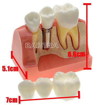 Hot Dental Demonstration Teeth Model  Implant Analysis Crown Bridge sinodental