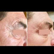 botox in Melbourne Region, VIC | Beauty Treatments | Gumtree