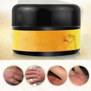Moisturizing-Anti-Drying-Oil-Control-Horse-Oil-Cream-Whitening-Anti-wrinkle-Scar