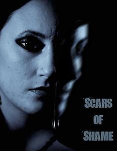 Scars-of-Shame