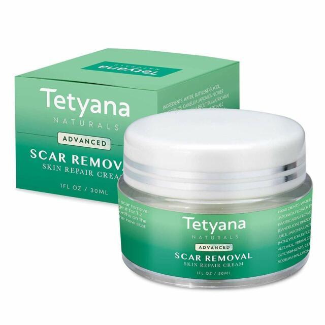 Tetyana Naturals Advanced Scar Removal Skin Repair Cream 1 Oz For Sale Online Ebay