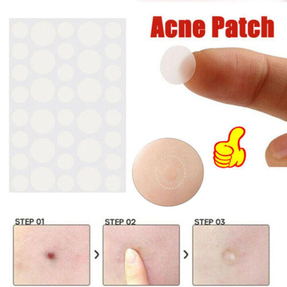 New 36pcs Sheet Skin Tag Acne Patch Pimple Treatment Sticker Tag