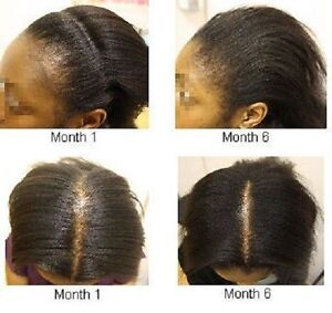 Image Is Loading Potent Strength Castor Oil For Hair Loss Alapecia
