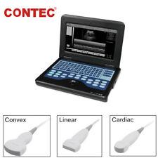 Portable Ultrasound Scanner Ultrasonograph Machine 3 Probe Convex Linear Cardiac