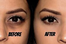 Himalaya Herbals Under Eye Cream - Reduces Dark Circles by 80% For 4 Weeks 15ml