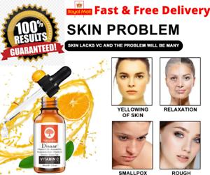 La Vitamina C Siero Viso con 100% di acido ialuronico anti invecchiamento/RUGHE VISO RETINOLO