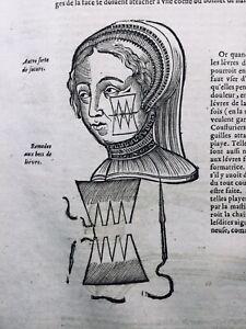 Chirurgie-du-Visage-1614-Ambroise-Pare-Chirurgien-Epilepsie-Medecine-Cautere