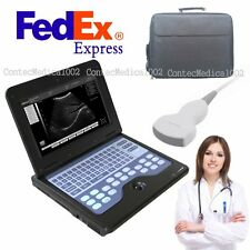 Usa Digital Portable Laptop Machine Digital Ultrasound Scanner35 Convex Probe