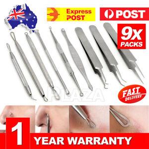 9pcs-Blackhead-Remover-Extractor-Tool-Pimple-Blemish-Popper-Comedone-Kit-Clip