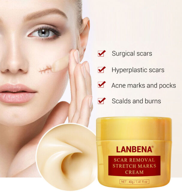 Lanbena Stretch Mark Removal Cream Pregnancy Scar Repair Face Acne