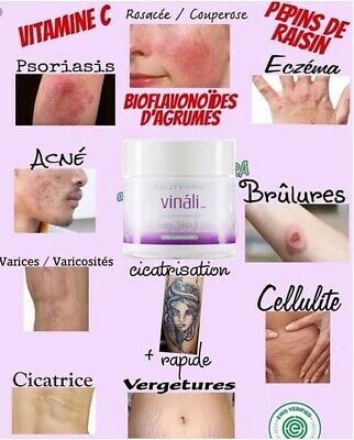 Le Vinali Cicatrisation Naturelle Vergetures Cellulite ...