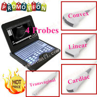 With 4 Probes Full Digital Ultrasound Scanner Diagnostic Machine High Resolution