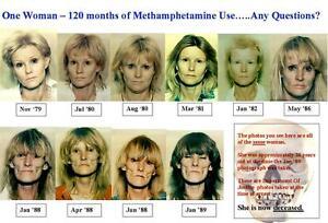 Image is loading Photo-Woman-10-Years-of-Meth-Use