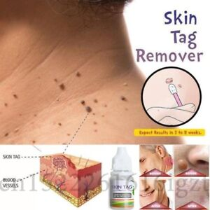 Skin-Tag-Removal-Warts-Treatment-Foot-Corn-Removal-Plantar-Warts-Foot-Care-10ml