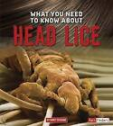 What You Need to Know About Head Lice by Nancy Dickmann (Hardback, 2016)