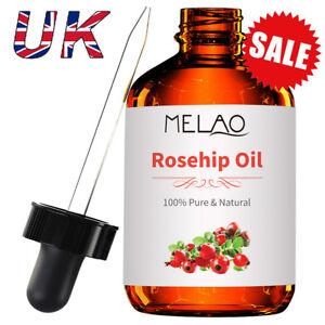 118-ml-Organic-Rosehip-Oil-Cold-Pressed-Unrefined-Certified-Premium-Moisturizer