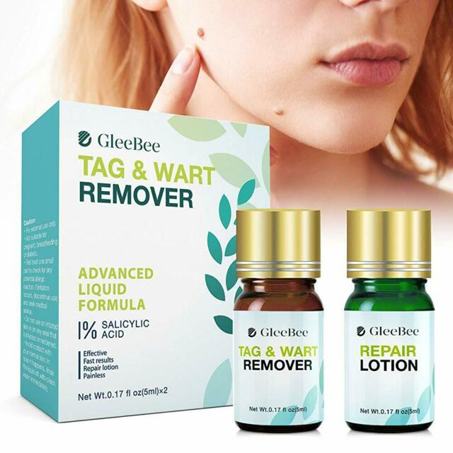 10ml Mole Skin Tag Removal Solution 100 Remover Skin Tags
