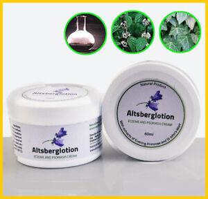 Natural-Psoriasis-Cream-Dermatitis-Eczematoid-Eczema-Ointment-Treatment-Psorias