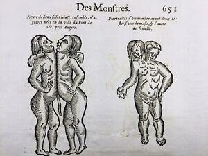 Hermaphrodite-1614-Gynecologie-Les-Ponts-de-Ce-Rare-Gravure-Ambroise-Pare-Jumeau